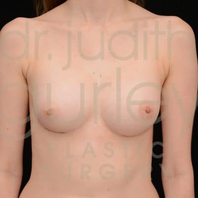 Breast Augmentation Before & After Patient #1231
