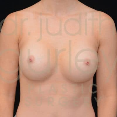 Breast Augmentation Before & After Patient #1277