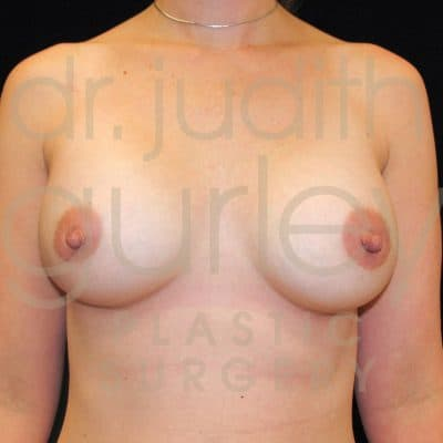 Breast Augmentation Before & After Patient #1369