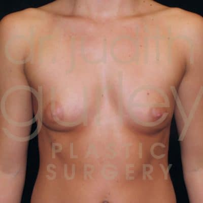 Breast Augmentation Before & After Patient #2153