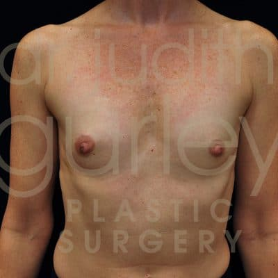 Breast Augmentation Before & After Patient #7065