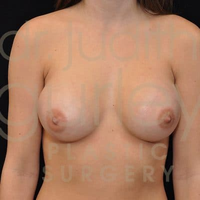 Breast Augmentation Before & After Patient #7956