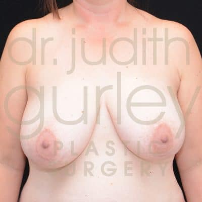 Breast Augmentation and Lift Before & After Patient #1947