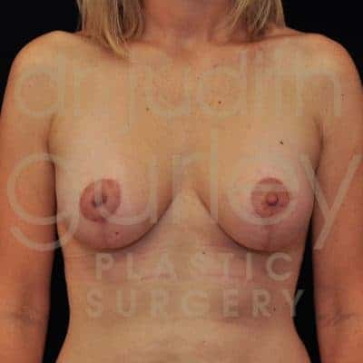 Breast Augmentation and Lift Before & After Patient #2276