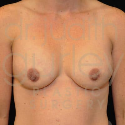Breast Augmentation and Lift Before & After Patient #2323