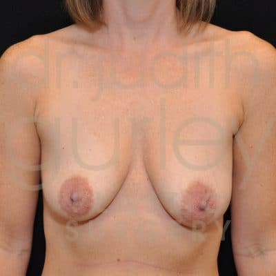Breast Augmentation and Lift Before & After Patient #2464