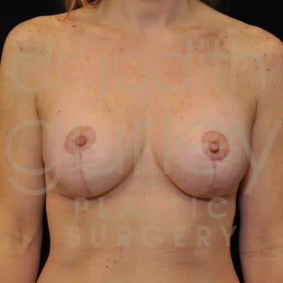 Breast Augmentation and Lift Before & After Patient #2511