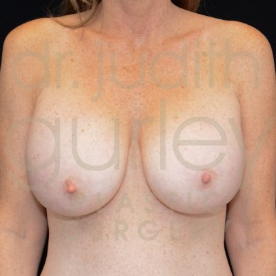 Breast Augmentation and Lift Before & After Results