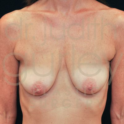 Breast Augmentation and Lift Before & After Patient #2840