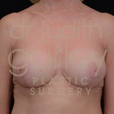 Breast Augmentation and Lift Before & After Patient #3028