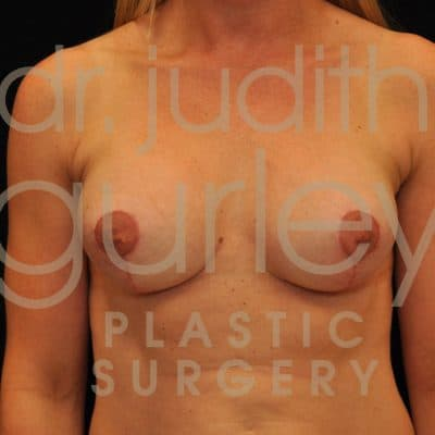 Breast Surgery Before & After Results