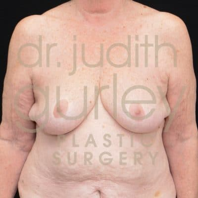 Breast Augmentation and Lift Before & After Patient #3310