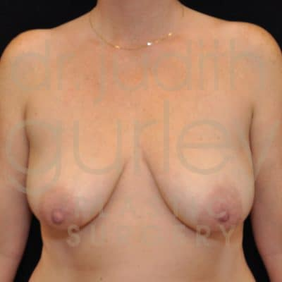 Breast Augmentation and Lift Before & After Patient #5810