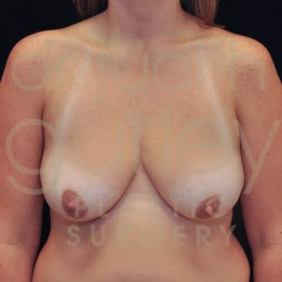 Breast Augmentation and Lift Before & After Patient #6482
