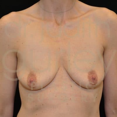 Breast Augmentation and Lift Before & After Patient #9498
