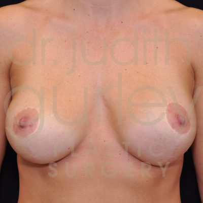 Breast Augmentation and Lift Before & After Patient #1242