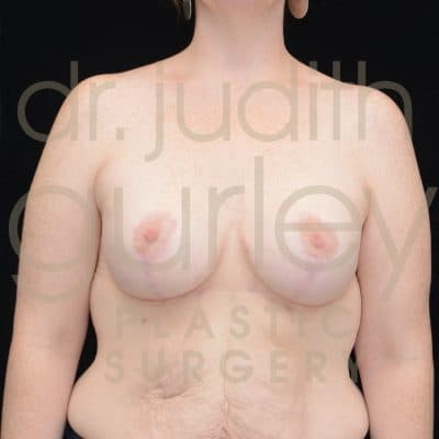 Breast Augmentation and Lift Before & After Patient #1336