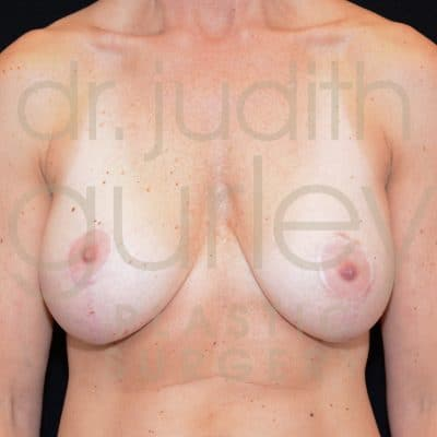 Breast Augmentation and Lift Before & After Patient #1524