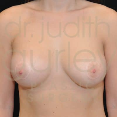 Breast Augmentation and Lift Before & After Patient #1571