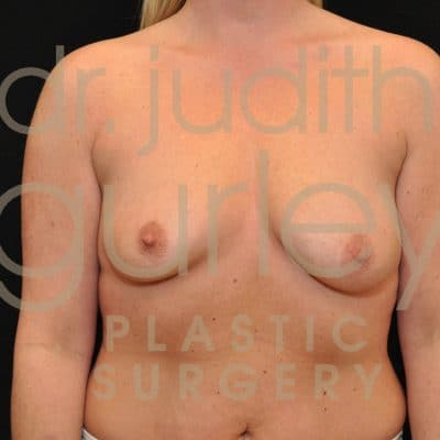 Breast Asymmetry Correction Surgery Before & After Results