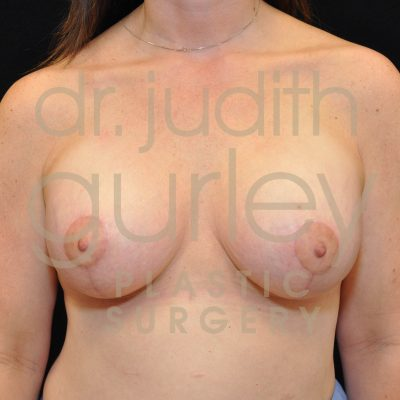Breast Asymmetry Correction Surgery Before & After Patient # 3118