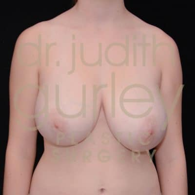Breast Reduction Surgery Before & After Patient # 5682