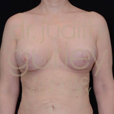 Breast Reduction Surgery Before & After Patient # 6058