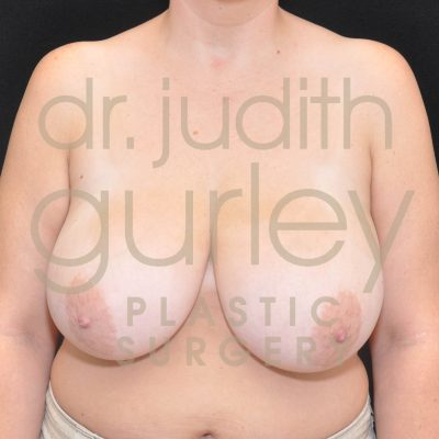 Breast Reduction Surgery Before & After Results