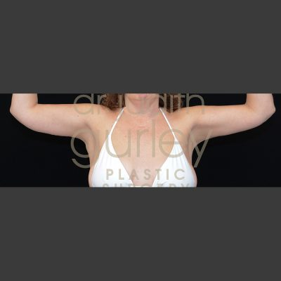Arm Lift Plastic Surgery Before & After Results