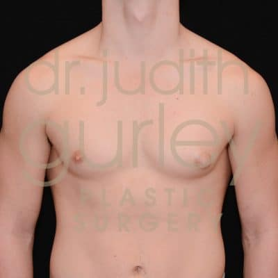 Gynecomastia Correction Surgery Before and After Results