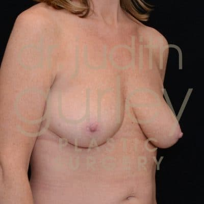 Breast Lift Before & After Patient #2529