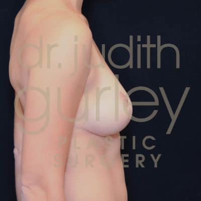 Breast Lift Before & After Patient #2717