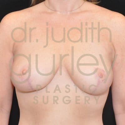 Breast Lift Before & After Patient #2764