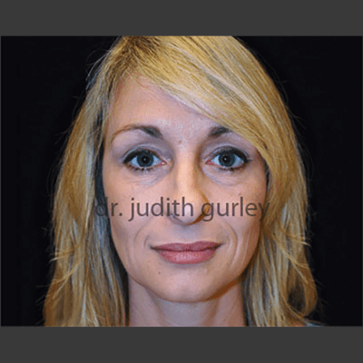 Botox - Before & After Results