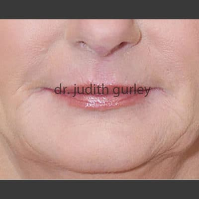 Facial Filler - Before and after results of a women's face