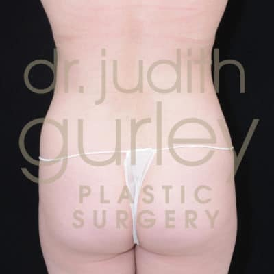 Liposuction Plastic Surgery Before & After Results