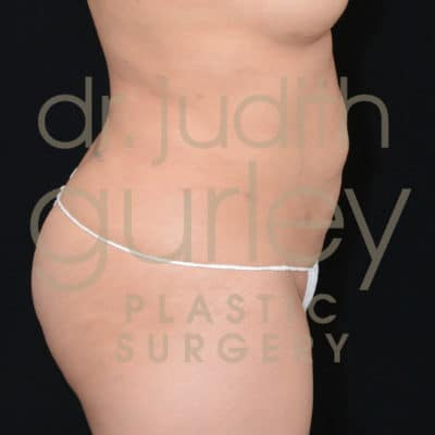 Actual Liposuction Before & After Plastic Surgery Results