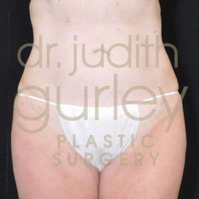 Liposuction Before & After Results