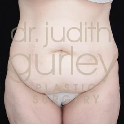 Tummy Tuck before and after results