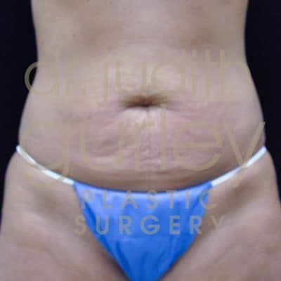 Tummy Tuck Plastic Surgery Before & After Results