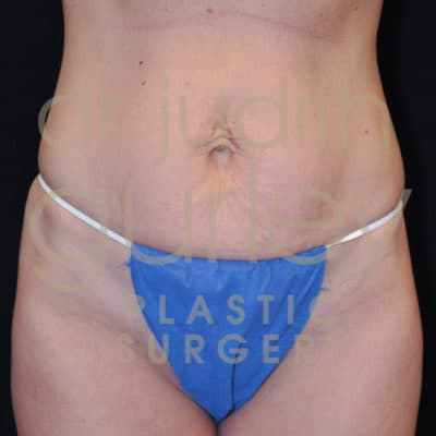 Tummy before and after results