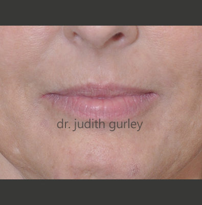 Lip Filler - Before and after results of a women