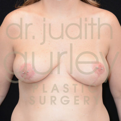 Breast Implant Removal with Lift Before & After Patient #10040