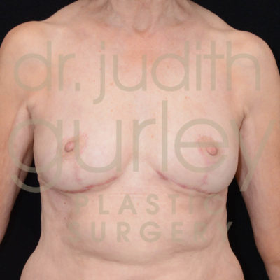 Breast Implant Removal with Lift Before & After Patient #5265
