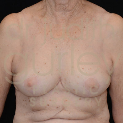 Breast Implant Removal with Lift Before & After Patient #5312
