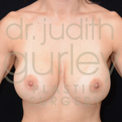 Breast Implant Removal with Lift Before & After Patient #5453
