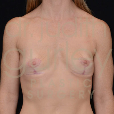 Breast Implant Removal with Lift Before & After Patient #5547