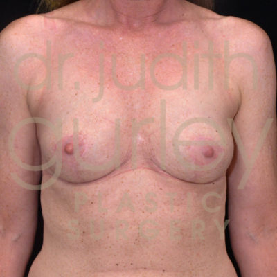 Breast Implant Removal with Lift Before & After Patient #5594