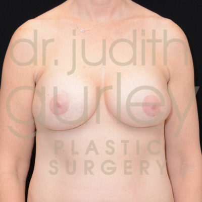 Breast Implant Removal with Lift Before & After Patient #5688