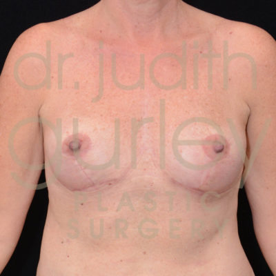 Breast Implant Removal with Lift Before & After Patient #5735
